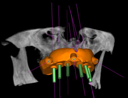 Computador gera a guia cirúrgica para  colocação dos implantes na posição correta